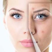 Choosing a Great Sarasota Dermatologist Part 3 – How To Find The Right Dermatologist