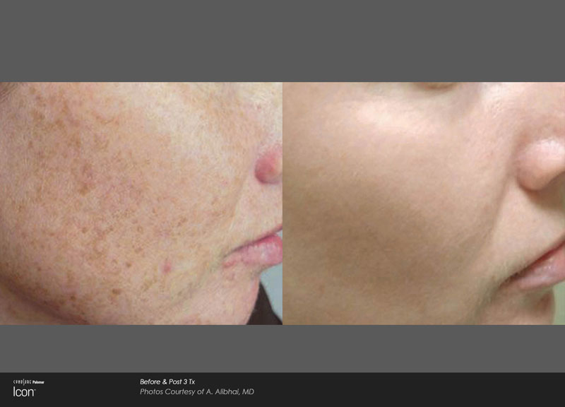 IPL Facial / Photofacial Sarasota Before and After Photos