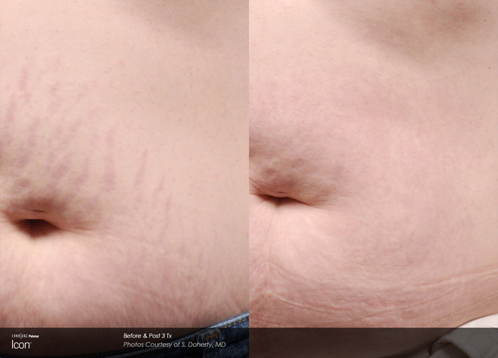 Scar Treatment Before & After3