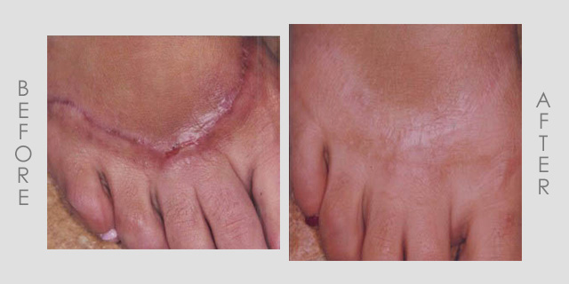 Scar Treatment Before & After1