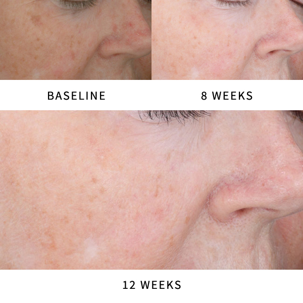 Actinic Keratosis Before & After