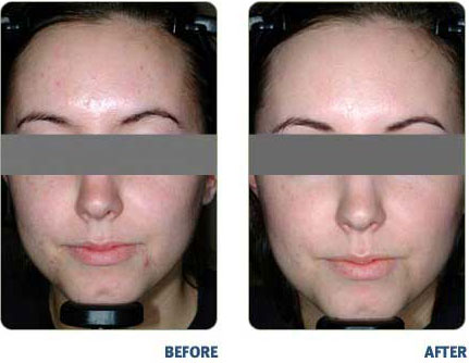 BLU-U-For Acne Before & After1