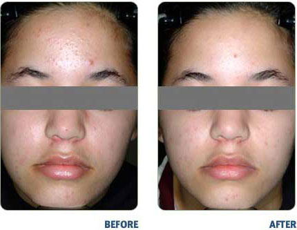 BLU-U-For Acne Before & After2