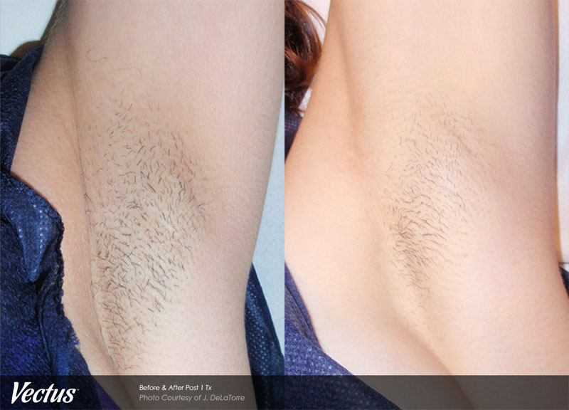 Laser Hair Removal Before & After1