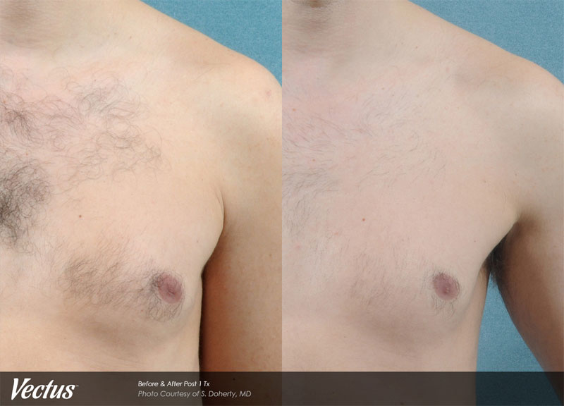Laser Hair Removal Before & After2