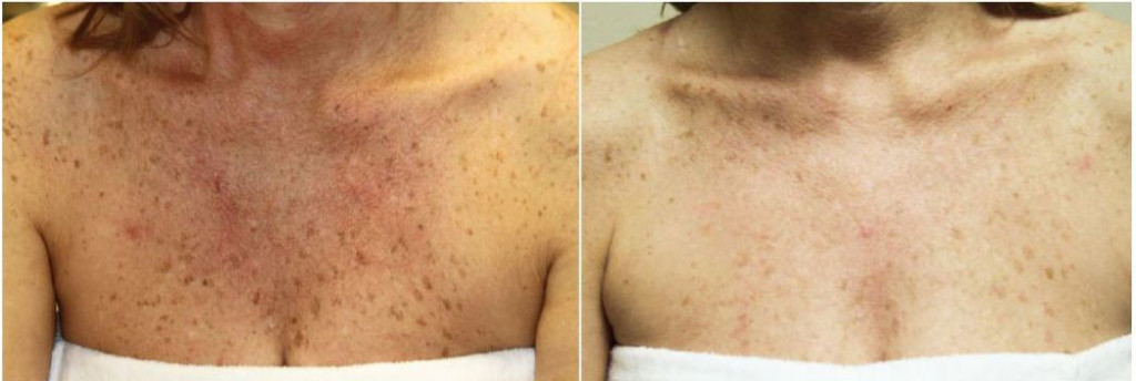 Before And After Acne1