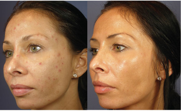 Before And After Acne2