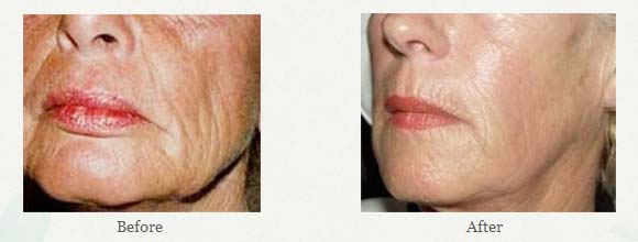 What is Sculptra