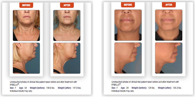 Kybella Before & After1