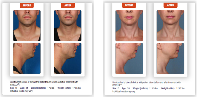 Kybella Before & After2
