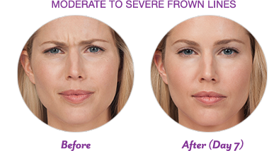 BOTOX-Result-Before-and-After-Photos