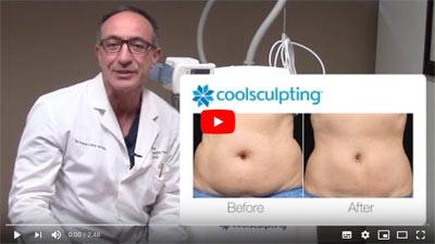 CoolSculpting-Video-Series-Part-–-2