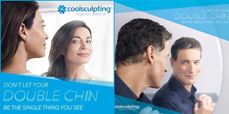 Coolsculpting-Double Chin