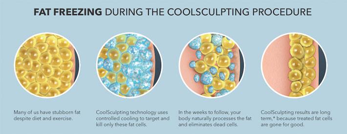 fat-freeze-coolsculpting