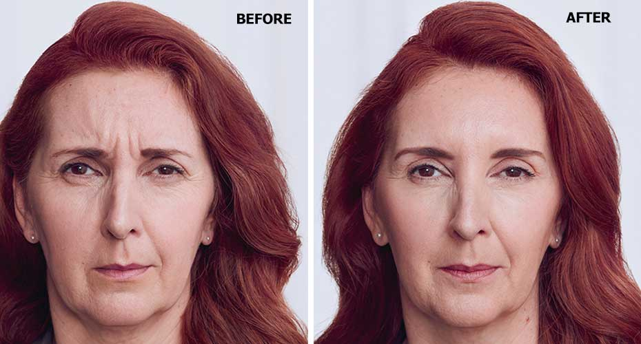 Before-After-Botox-Injector-in-upderm-2