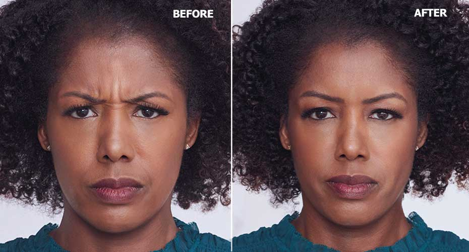 Before-After-Botox-Injector-in-upderm