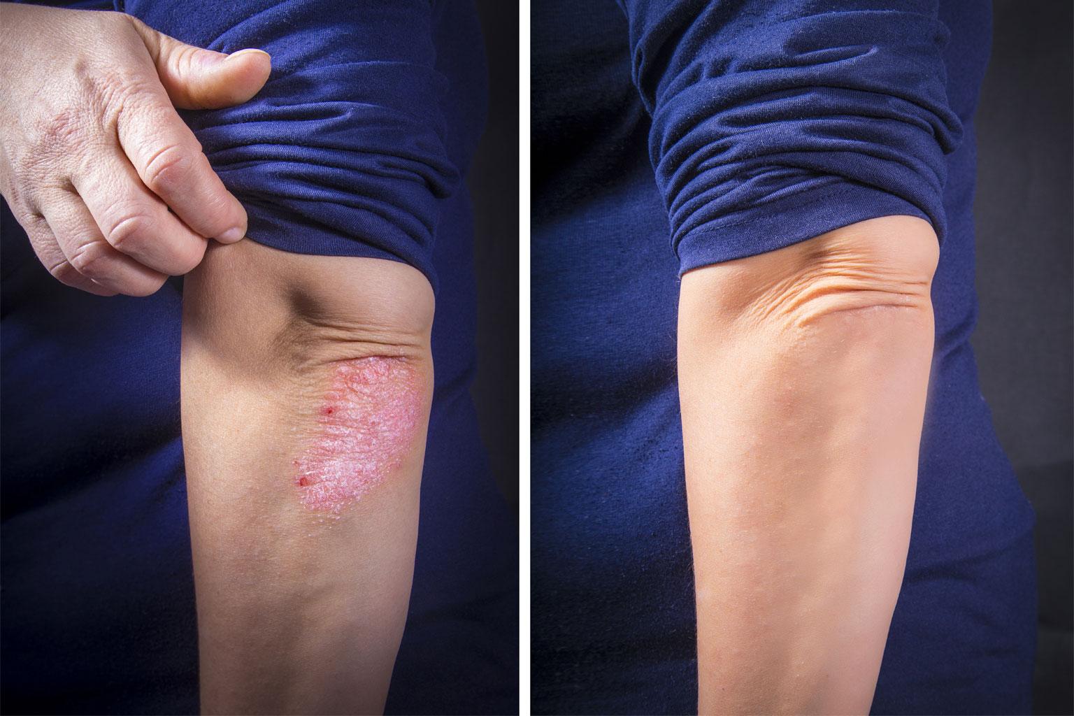 Psoriasis XTRAC Laser